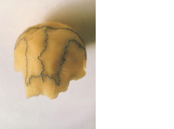 schedelbuiten-dia-445